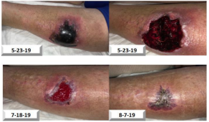 Traumatic Hematoma to Left Leg